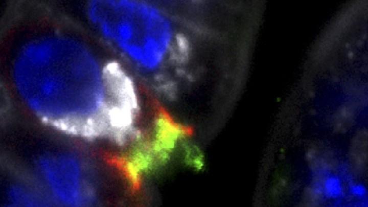 Study reveals how Listeria breaches the placenta