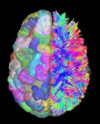 Brain Wiring Diagrams