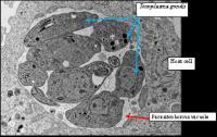 Microscope: <em>Toxoplasma gondii</em>