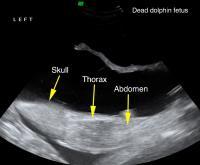 Y31 Dead Fetus Ultrasound