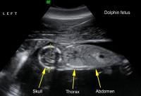 Y37 Fetus Ultrasound