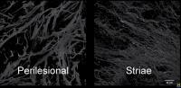 3-D Wiew of Stretch Mark Skin