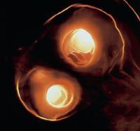 Atherosclerosis in Carotid Artery