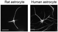 Rat And Human Astrocytes