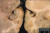 Domoic Acid Brain Damage