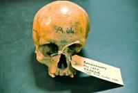 Ballynahatty Skull