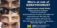 Keratoconus Risk Factors