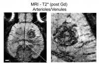 Brain Tumor Vascularisation