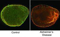 Brain Cell Dysfunction in Alzheimer's Disease