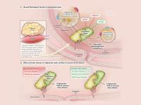 Mutated Gene Safeguards Heart Attack