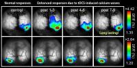 tDCS Enhances Responses to Visual Flashes