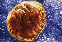 Toxoplasma gondii Tissue Cyst
