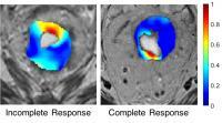 Rectal Cancer Images