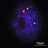 A Macrophage with Three Intracellular <i>Tuberculosis bacilli</i>