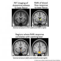 Brain Scans of Response to Beer Taste