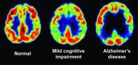 PET Scans Show Progression of Cognitive Decline
