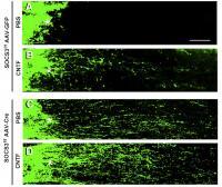 Regenerating injured nerve fibers