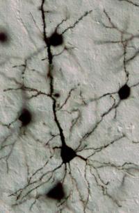 Golgi Technique