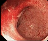 Colonoscopy Image of Ulcerative Colitis