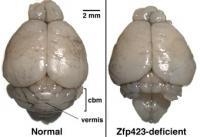 Malformed Cerebellum