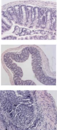 Ulcerative Colitis Tissue