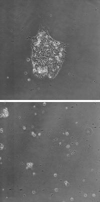 Human Embryonic Stem Cells