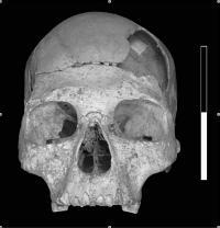 Oase 2 Cranium