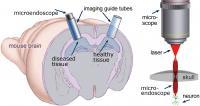 Deepbrain Apparatus