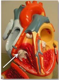Tricuspid Heart Valve