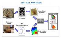 ECGI Imaging