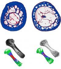 Lower Bone Density