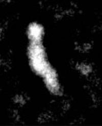 CETP Micrograph