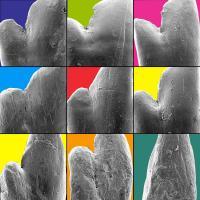 Haplochromine Cichlid Teeth