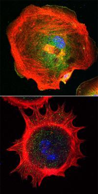 Fibroblasts