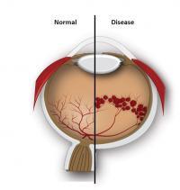Normal vs. Diseased Retina (schematic)
