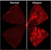 Normal vs. Diseased Retina