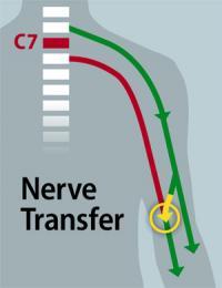 Surgeons Restore Some Hand Function to Quadriplegic Patient (1 of 2)