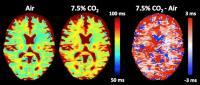 MRI Detects pH Changes