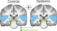 Brain Dyslexia