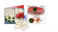 Tumor Stressor