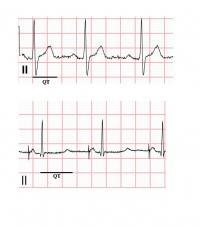 LQTS Patient ECG