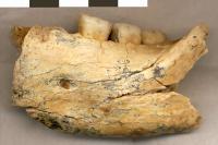 Human Jaw Bone