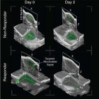 3-D Ultrasound Molecular Imaging (USMI) Images