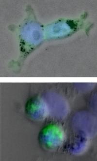 ALS Protein