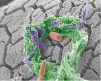 Altered Gut Microbiota