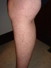 Leg with Livedo Reticularis
