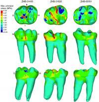 Teeth Stress Distribution