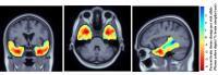 Brain Atrophy in Carriers