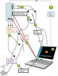 BCI-FES Device