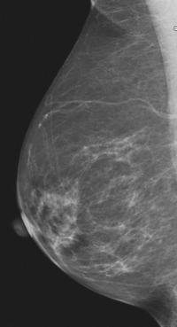 Fatty Breast Tissue